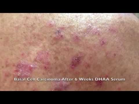 Sun Damage, Keratosis and Basal Cell Carcinoma Skin Treatment Trials