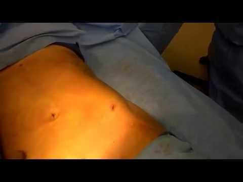 liposculpting the abdomen