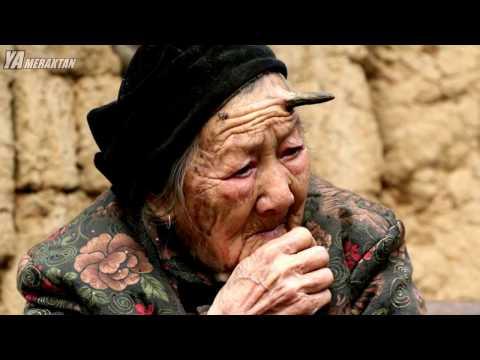 İnsanlarda Nadir Görülen En Tuhaf 8 Hastalık