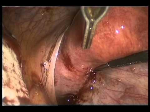 Эндометриоидная киста яичника: лечение, удаление, разница