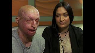 UK Acid Attack Victim Speaks Out