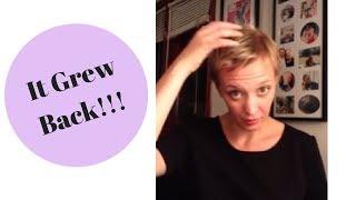 Alopecia: How My Hair Grew Back