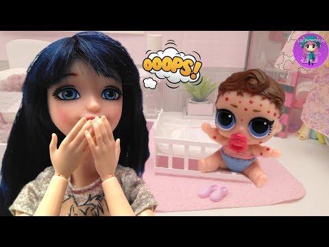 Bebé LOL tiene VARICELA y mamá Marinette la cuida 🌷 Videos de Ladybug y muñecas LOL - JJ's Toys