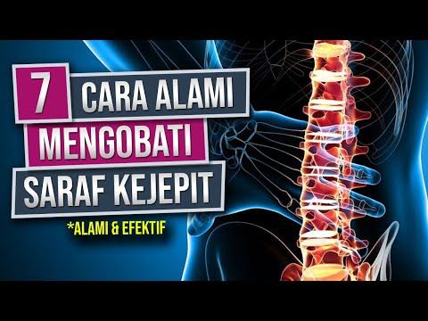Cuma 5 Menit !! SYARAF KEJEPIT SEMBUH TOTAL !! WOW Ramuan Ajaib.