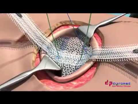 UCMC ClearMesh Composite - Umbilical Hernia Repair
