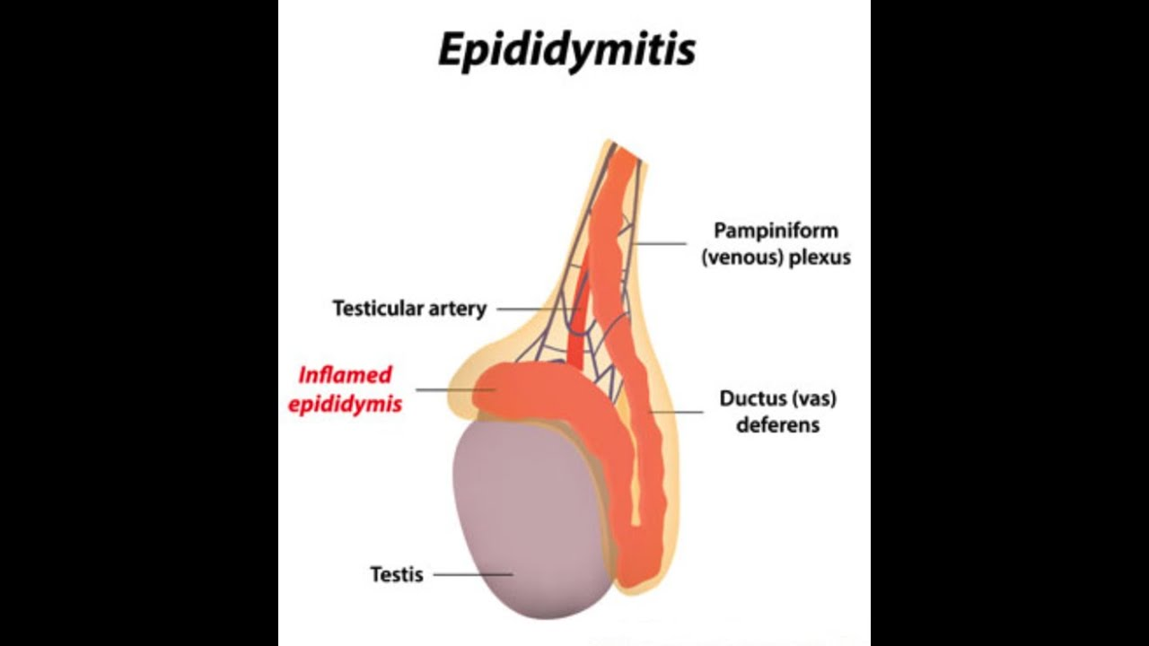 epididymitis - youtube, Human Body