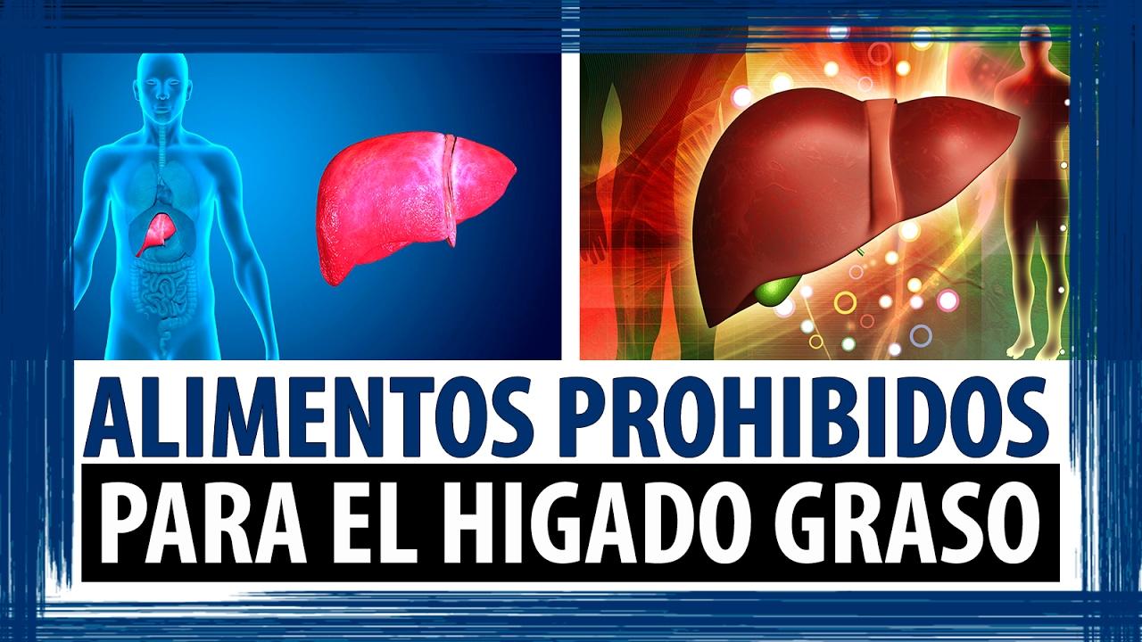 Alimentos prohibidos para el higado graso dieta para personas con higado graso youtube - Alimentos para el higado graso ...