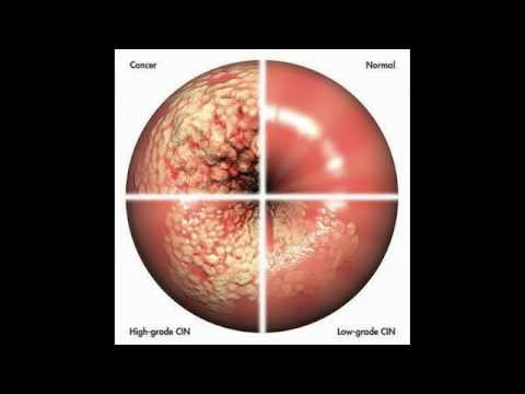 Cáncer del cuello uterino | Definición, diagnostico, síntomas, prevención y pronóstico