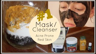 My #1 Mask/Cleanser for Acne/Red Skin (3 Ingredients)