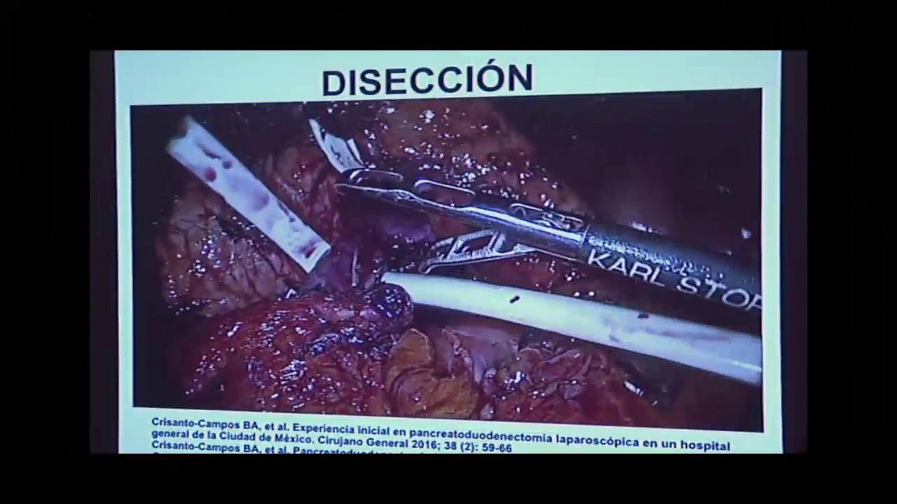 metode de tratare a operațiunilor varicoase cu funcționare