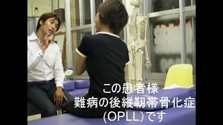 後縦靭帯骨化症(OPLL) 難病