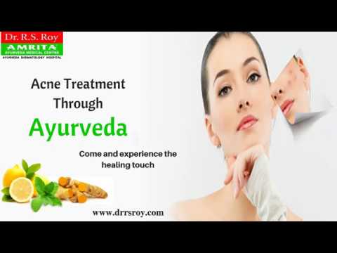 Acne Ayurvedic Treatment In Kerala | Best Ayurvedic Skin Specialist | Acne Removal In India