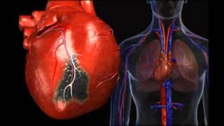 питание при ишемической болезни сердца