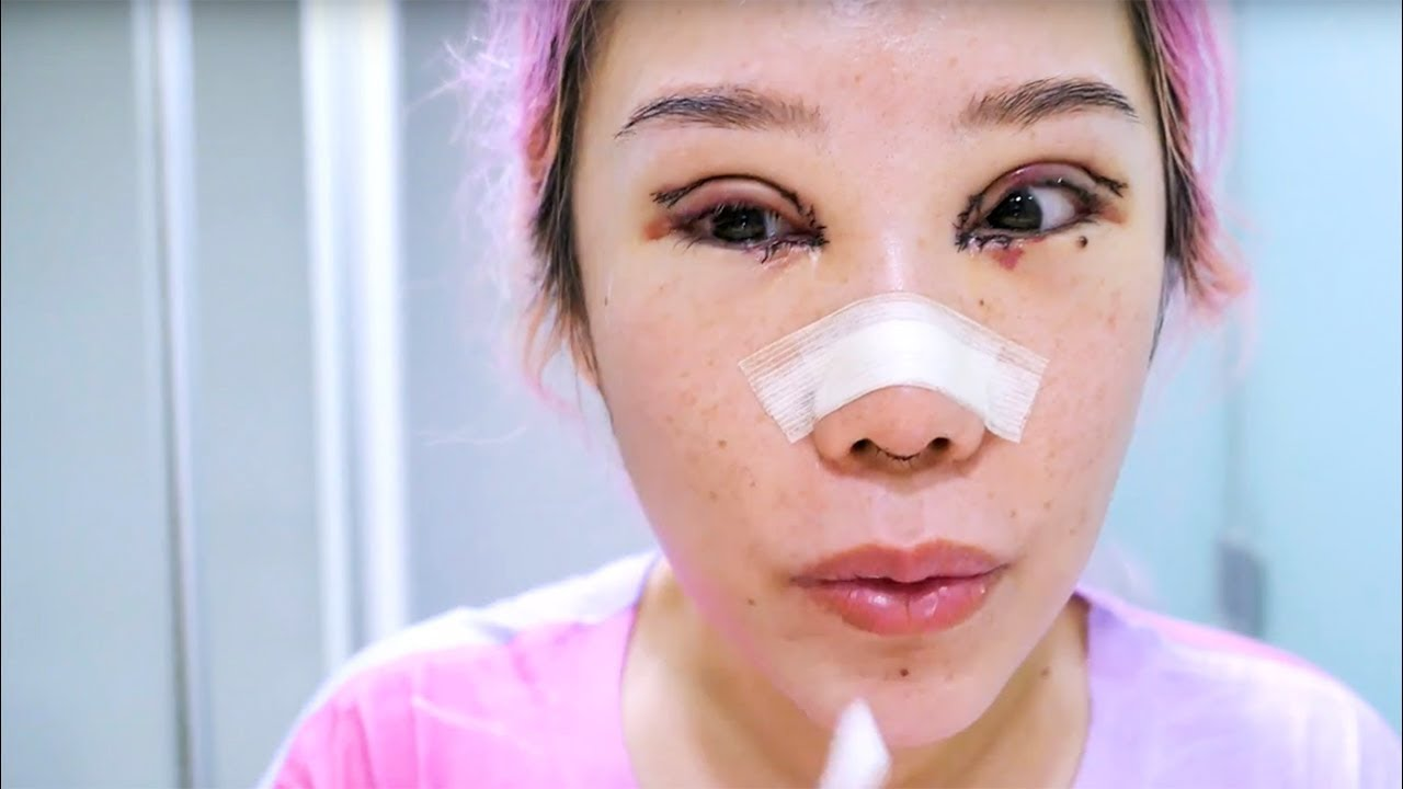 dr martin huang eyelid nose plastic surgery recovery part 1 youtube