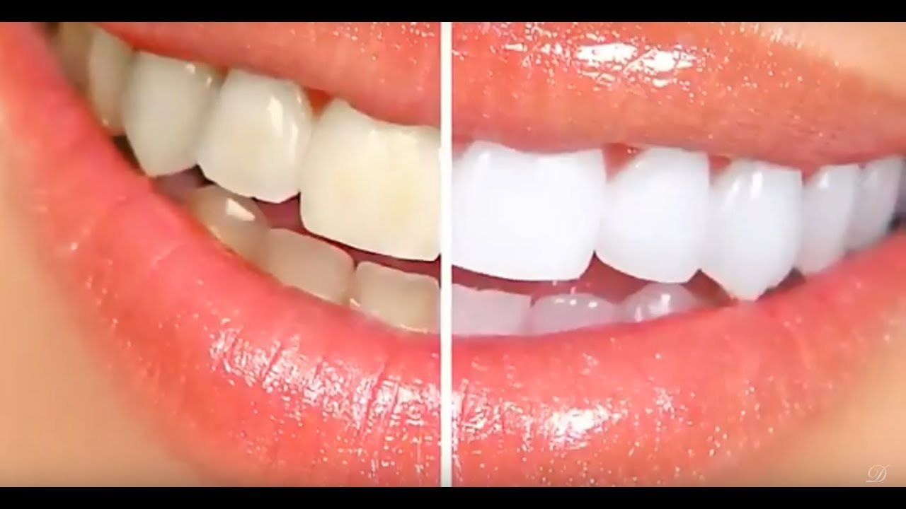 How Much Does Tooth Whitening Costs Glendale Cosmetic Dentist