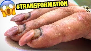 DESTROYED NAILS #TRANSFORMATION | HARD WORKER WOMAN GETS CRAZY #RUSSIAN STYLE MANICURE at home
