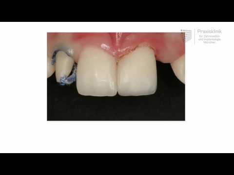 Maryland bridge: The preferred procedure if only single teeth are missing