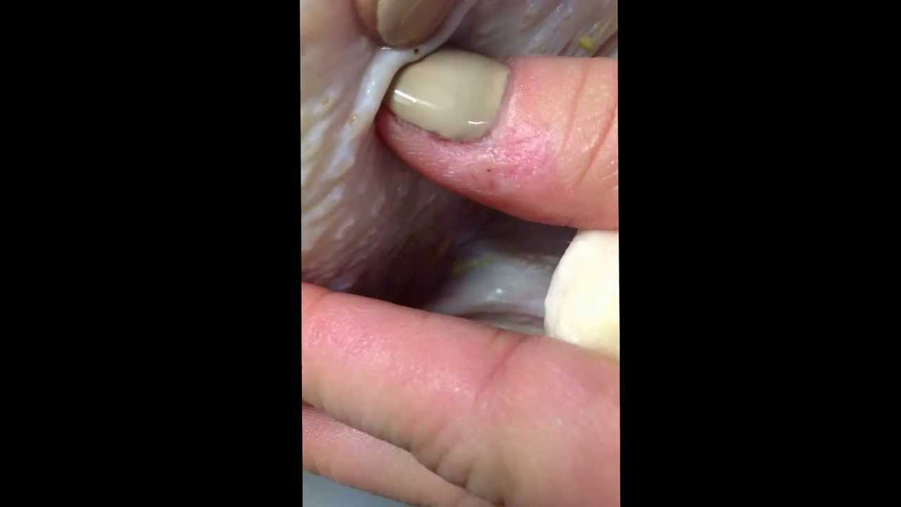 Chicken skin popping No  2 - YouTube