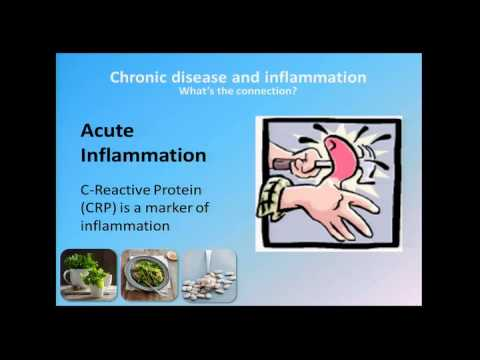 """Fighting """"Chronic Disease - Understanding the Risks"""" by Dr. Angela Saunders"""