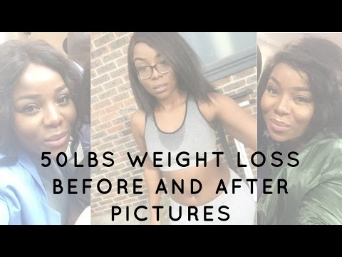 Cosmetic surgery to remove belly fat image 7