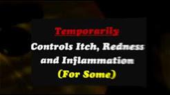 Eczema Treatment: Elidel Cream
