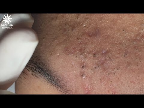 WARNING: A LOT OF BLACKHEADS (PART 1) | Lấy mụn ẩn dưới da,