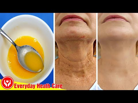 This Mixture Will Remove All Wrinkles Quickly, Use It This Way