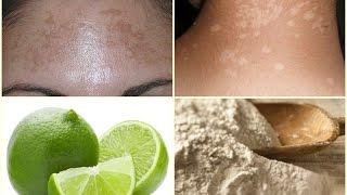 como quitar las manchas blancas de la piel remedios caseros