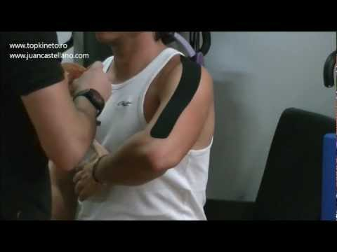Kinesio Taping for deltoid muscle pain | topkineto.ro