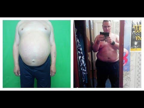 2 Типа ожирения: Растянутый желудок и Классический