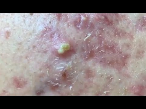 how-to-remove-blackheads-at-home-with-tool