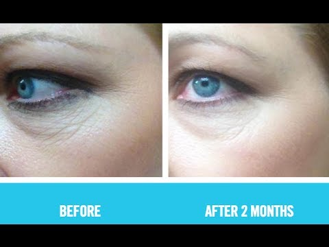 Anti Aging Skin Care Best Anti Aging Eye Cream To Reduce