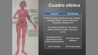 Suprarrenales: Insuficiencia suprarrenal (Addison)