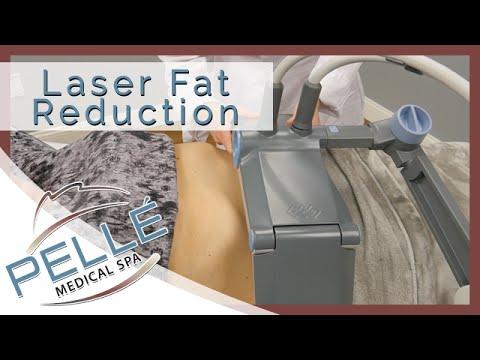 Laser Liposuction Exeter - Special Offer - Pelle Medical Spa