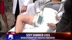Reduce Fat in Legs | CoolSculpting San Diego | William Groff, DO