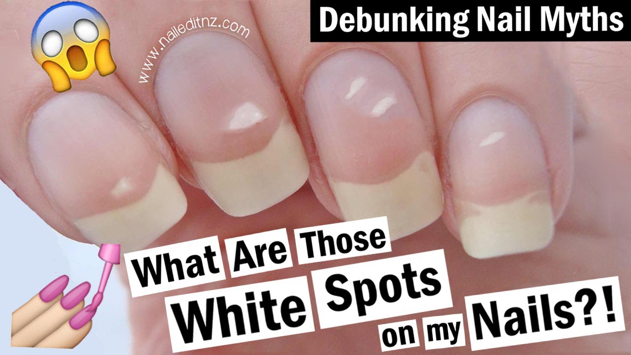 White Spots on your Nails - what causes them? | Debunking Nail Myths ...