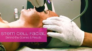 Stem Cell Facial -  Lifelicious