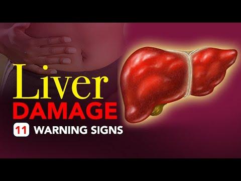 Liver Damage 11 Warning Signs