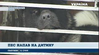 П'ятирічну дівчинку на Харківщині за голову покусав собака