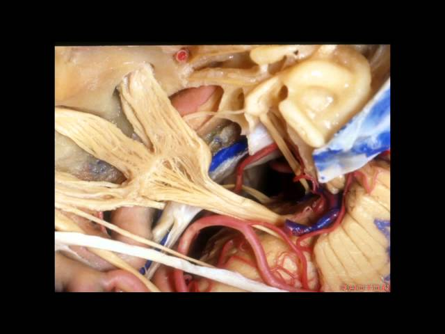 Cavernous Sinus and Middle Fossa - Part 2 of 2