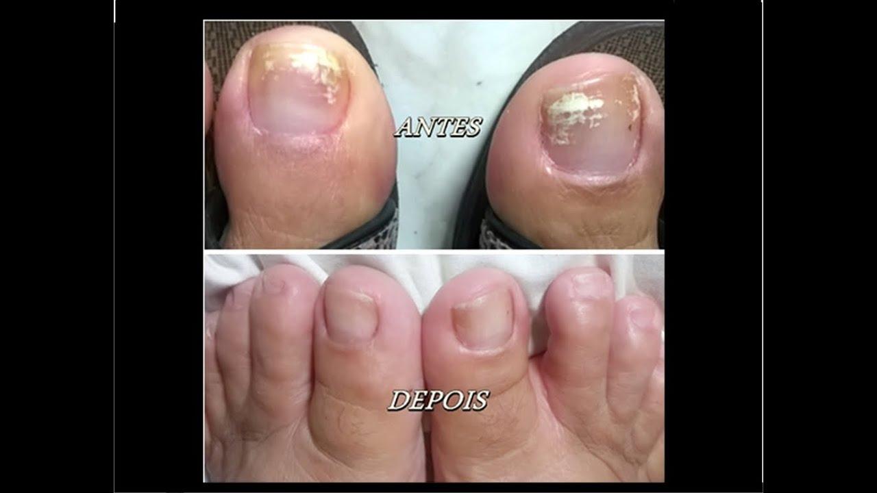 Os pés são descascados é um fungo