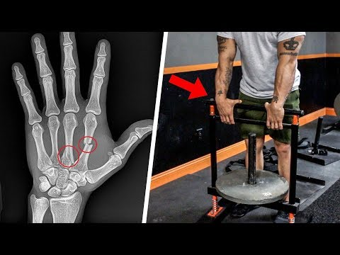 Hand Strength Exercises For Boxers: Wrist, Hand And Knuckle Injury Prevention