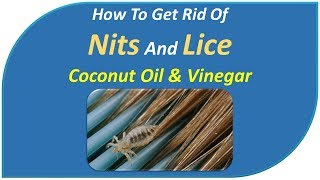 how to get rid of nits and lice - Coconut Oil & Vinegar