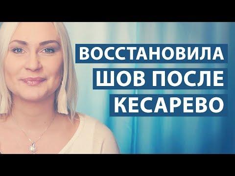 ВОССТАНОВЛЕНИЕ ШВА ПОСЛЕ РОДОВ - КЕСАРЕВО СЕЧЕНИЕ