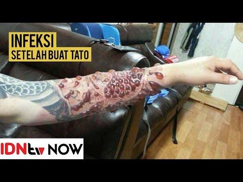 Tangan Pria Ini Berubah Menakutkan Karena Infeksi Tato Idntv Now Youtube