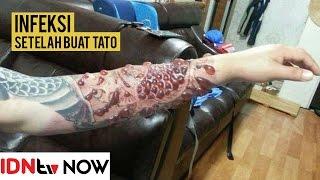 Tangan Pria Ini Berubah Menakutkan karena Infeksi Tato | IDNtv NOW