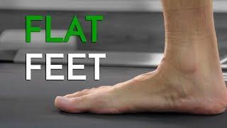 Flat Feet (Pes Planus) - Georgina Tay, Singapore Podiatrist