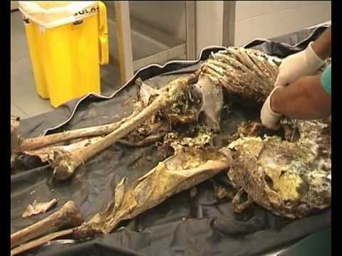 demystifying forensic anthropology part 1