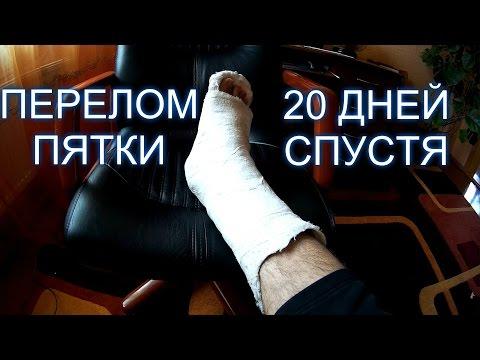 Вопрос: Реабилитация после перелома плюсневой кости?