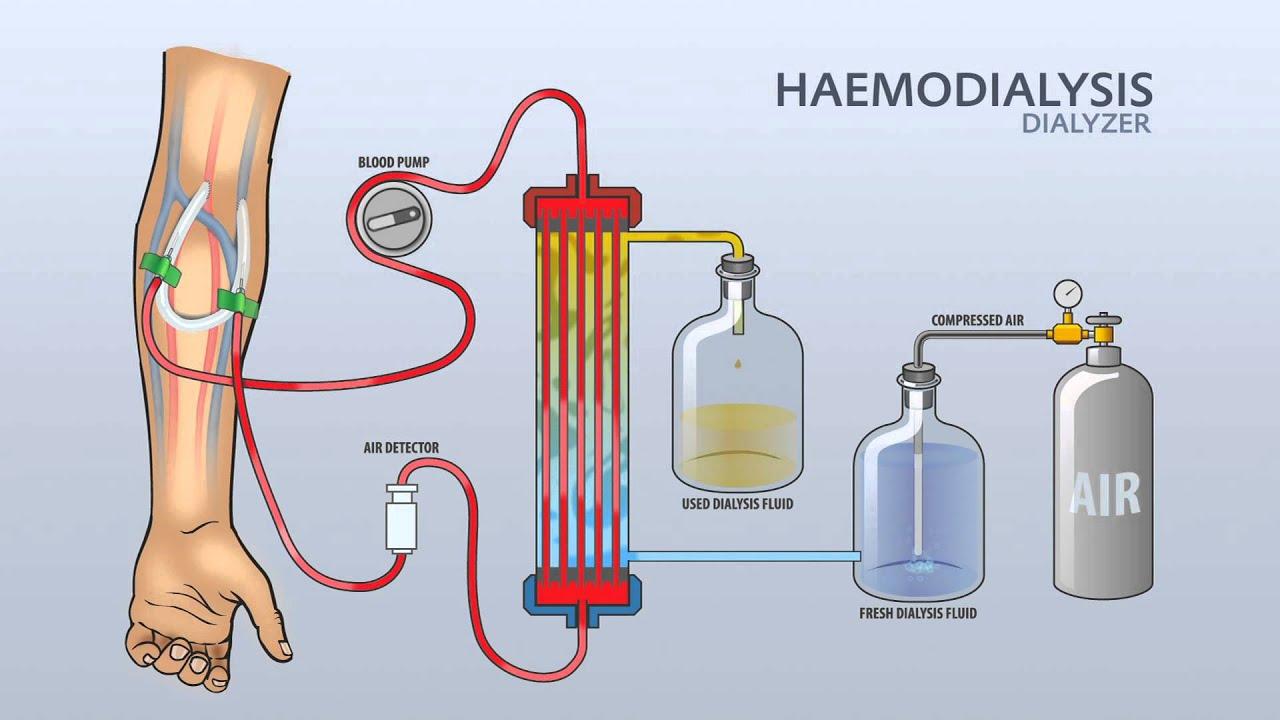 Haemodialysis Dialyzer